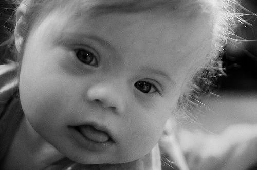 Defectos al nacimiento. Un desafío en la práctica pediátrica.